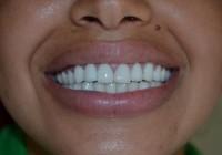 Tout savoir sur la couronne dentaire