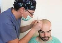 Combien de séances pour un implant capillaire ?